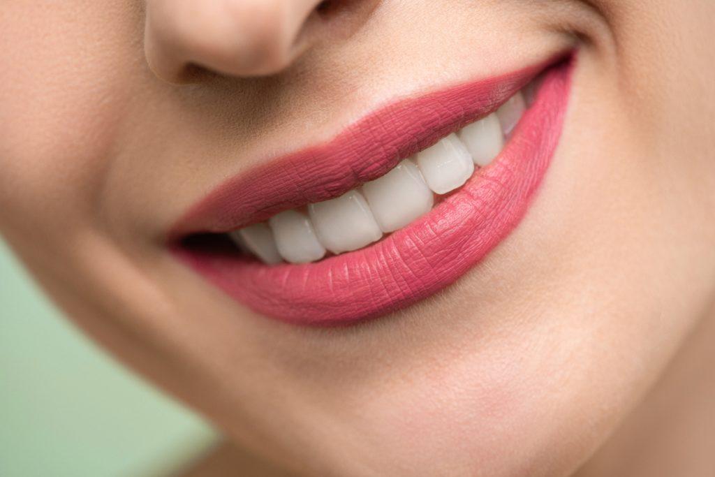 straight teeth smile woman