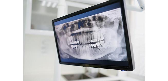 Dental Technology X-Ray
